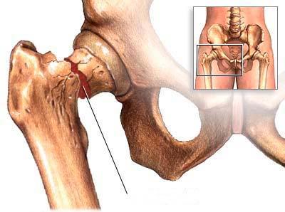 Где находится клиника в харькове лечение тазобедреного сустава операции на суставах волгоград стоимость